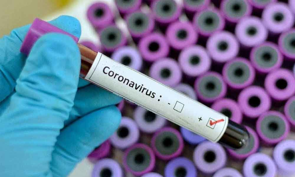 Covid-19 scare: 10 Chinese nationals to undergo test again