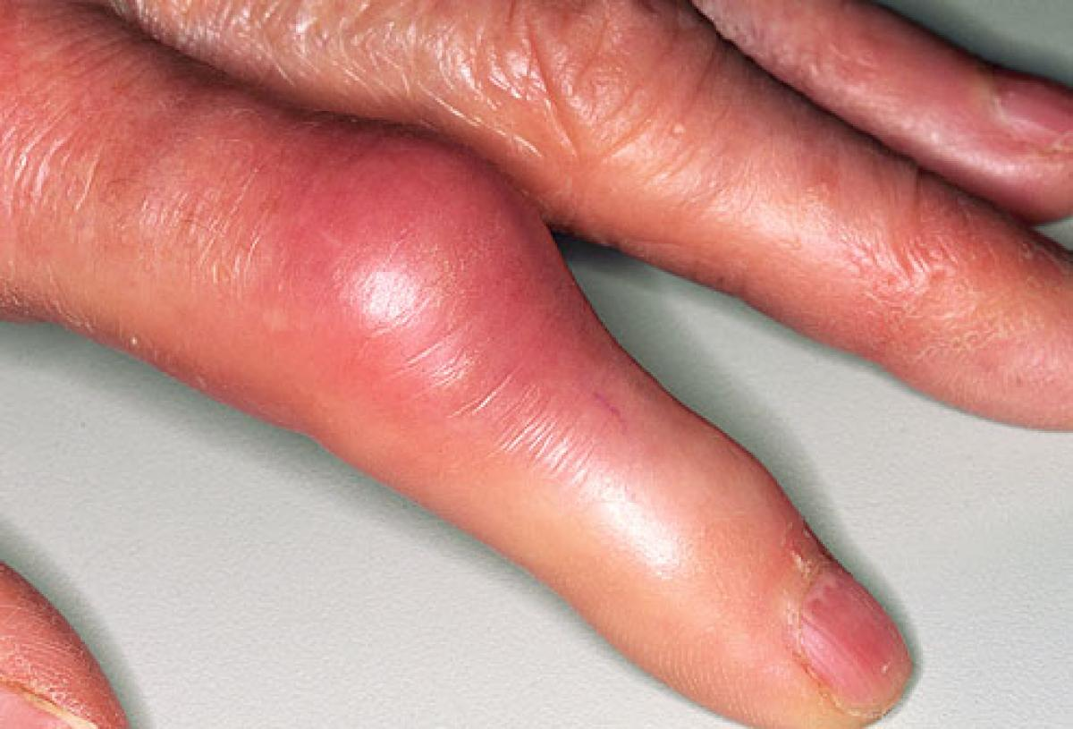 Toxic substances in tea form uric acid that causes gout and arthritis