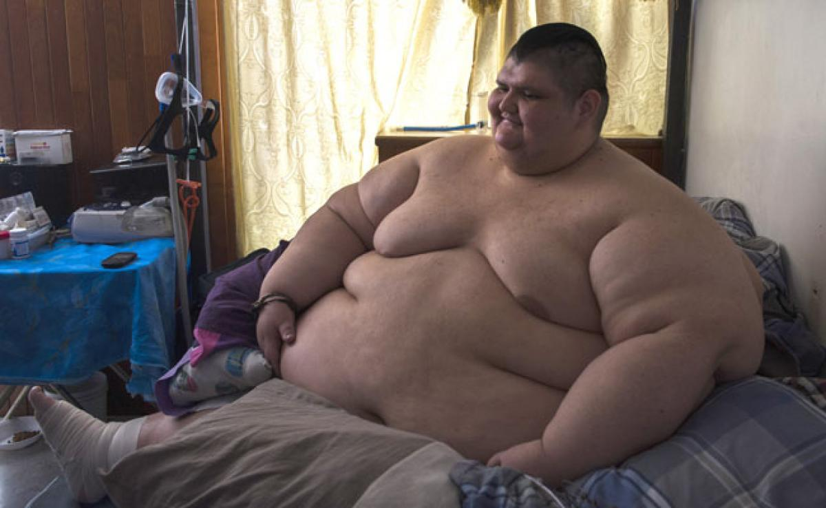 Worlds Most Obese Man, 32, Has Been On 3-Month Diet For Surgery: Report