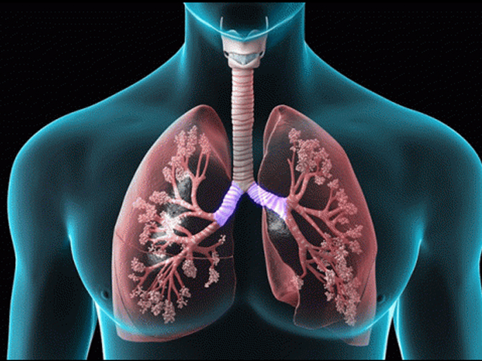 Smokers can now detox their lungs Naturally