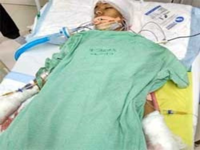 Madhulika who injured in knife attack off ventilator