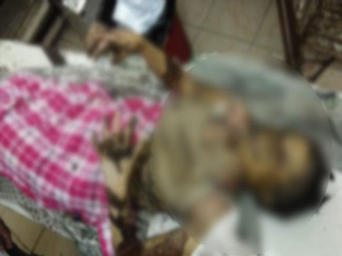 Girl set on fire by stalker for rejecting love in Warangal