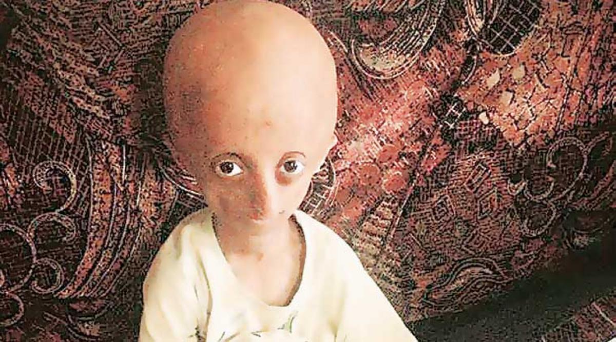 Nihal Bitla, India's face of Progeria dies in Telangana