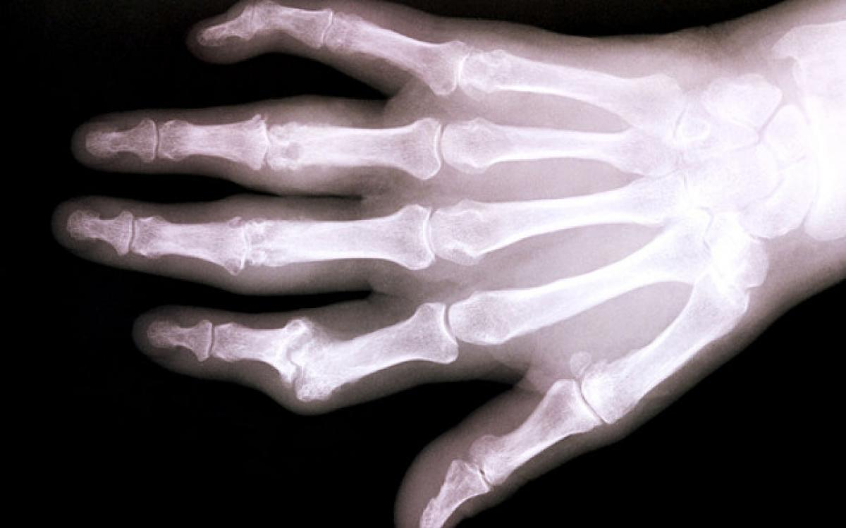 New treatment for bone loss discovered