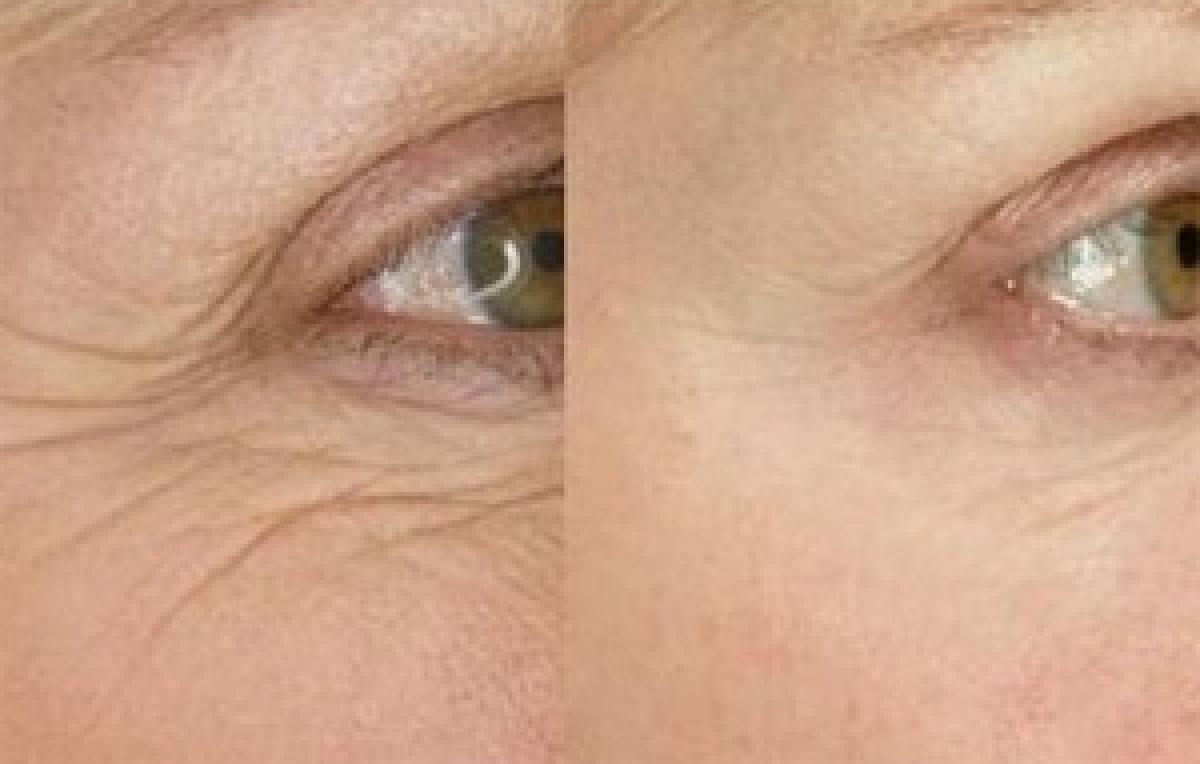 Wrinkles more visible near eyes than forehead, here