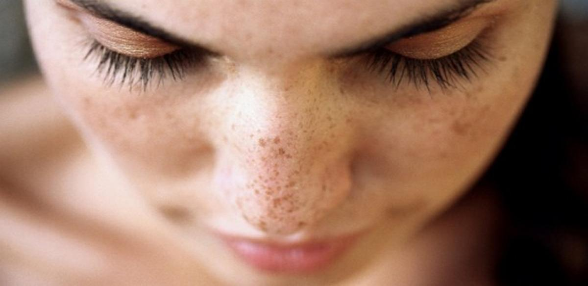 Traffic related air pollution linked to facial dark spots