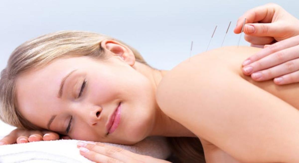 Acupuncture may reduce hot flashes in menopausal women