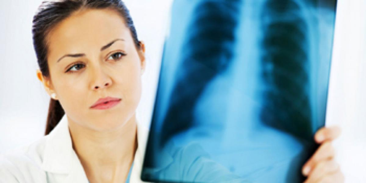 Early and accurate diagnosis of TB and lung cancer vital: No excuse for misdiagnosis!