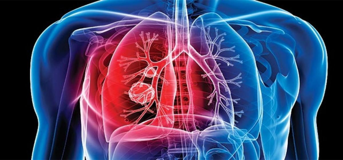 500 Brain TB cases in Telangana