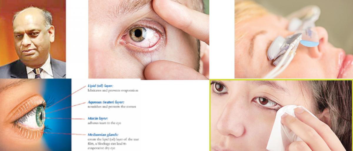 Know all about 'Dry Eye Syndrome'