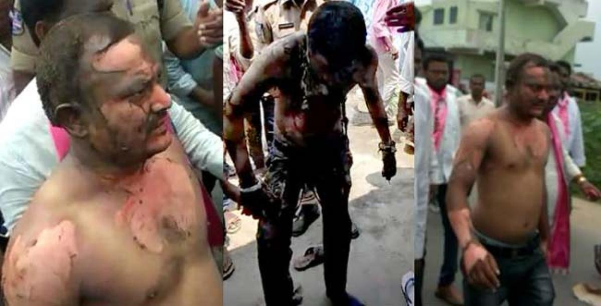Man attempts self-immolation demanding party ticket for Nallala Odelu