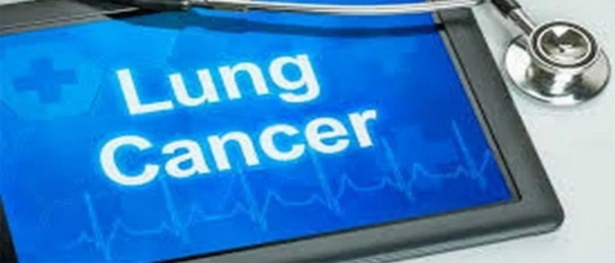 New technology may detect early-stage lung cancer